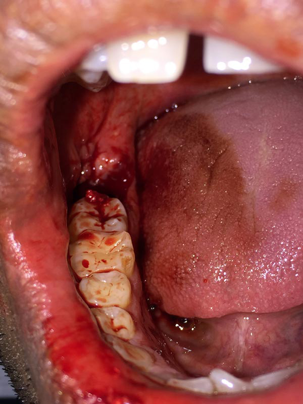 Excessive bleeding after extraction